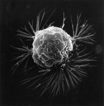 Breast_cancer_cell_(2)